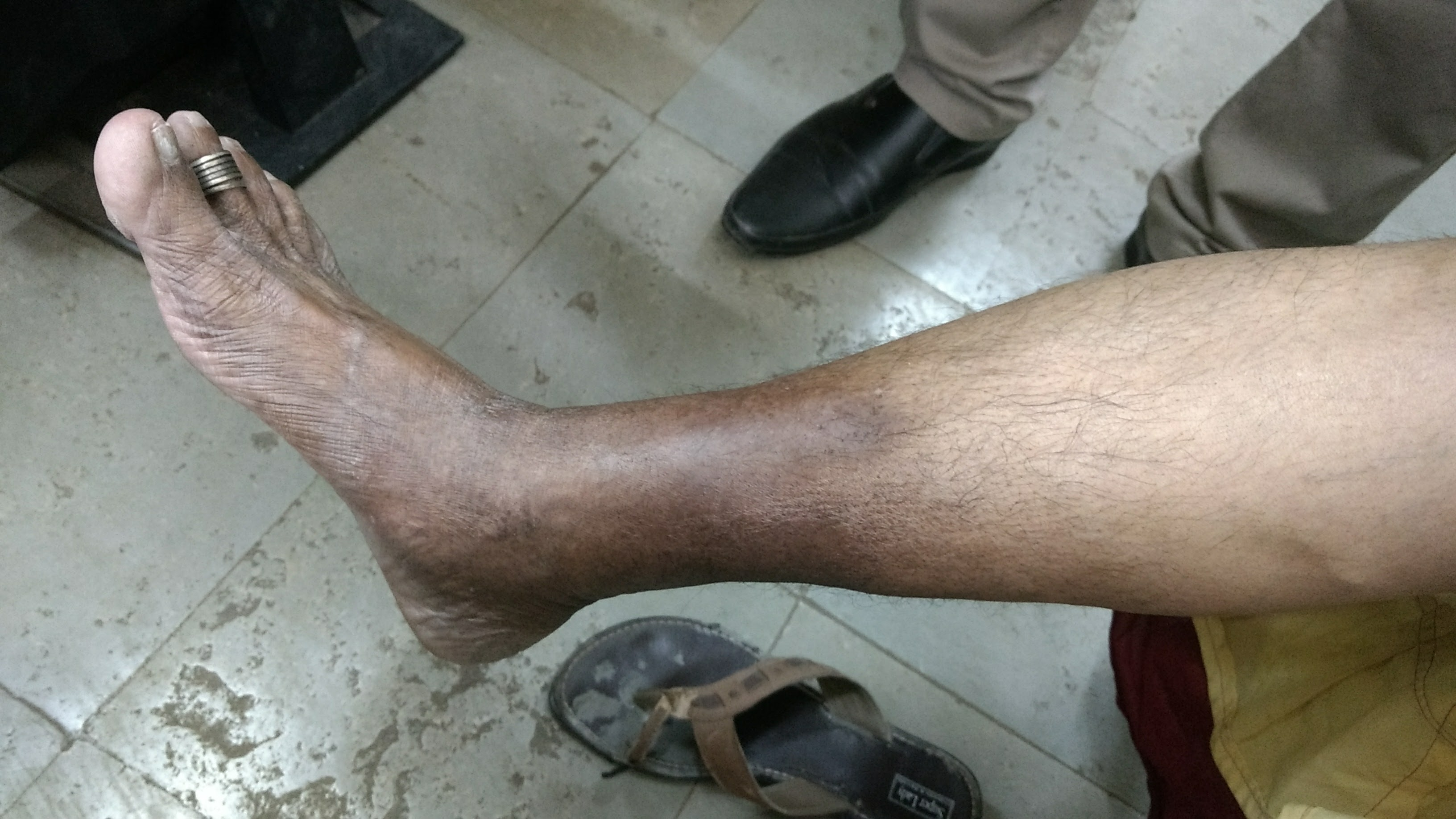 blackening venous insufficiency