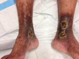 venous leg ulcer Dr Ashish sarode