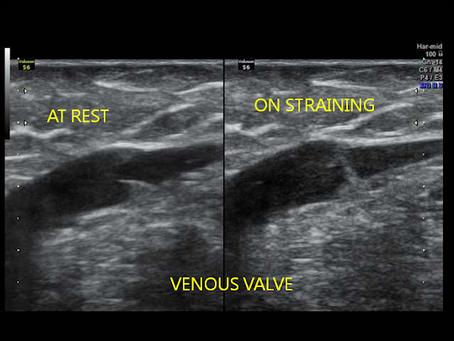 colour doppler for varicose veins