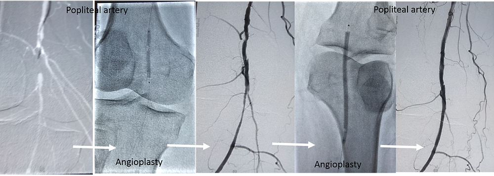 Angioplasty by interventional Radiologist Dr Ashish Sarode for peripheral vascular disease