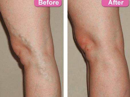 EVLT for Varicose veins- tell me about the procedure