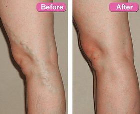 varicose veins laser treatment in vashi