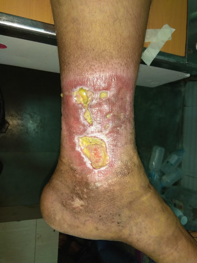 ulcer care