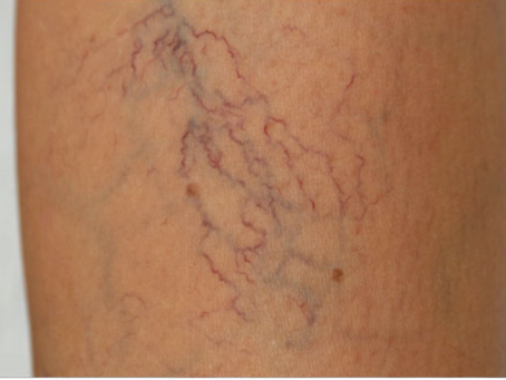 Sclerotherapy for spider veins and varicose veins