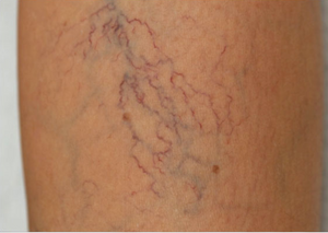 spider veins sclerotherapy in thane