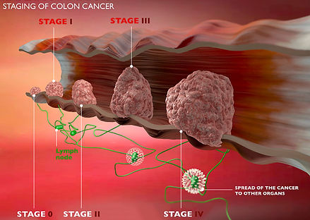 colon-cancer-stages-768x545.jpg
