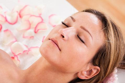 Kosmetisk akupunktur Boden