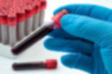 Blood analysis, clinical or medical test