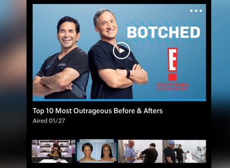 Catch my story on Botched Top 10 Outrageous Before and Afters.