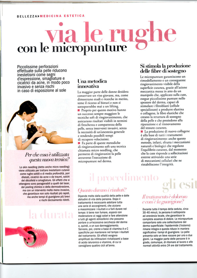 viversani articolo micropunture 1.jpg