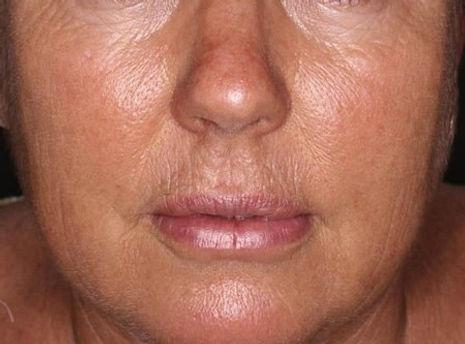 skin texture. 1jpg (3).jpg