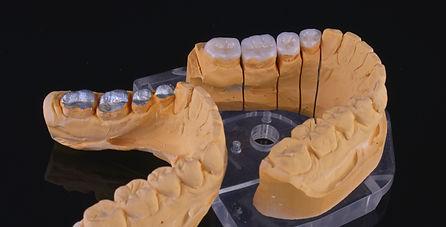 denti copia.jpg