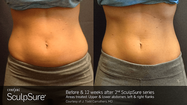 0717_BA_SculpSure_Carruthers_2017_nobadg