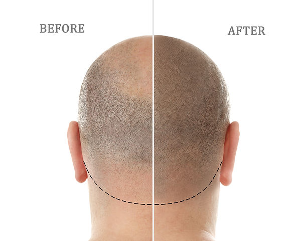 Man before and after hair loss treatment