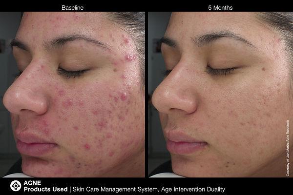marini acne 2.jpg
