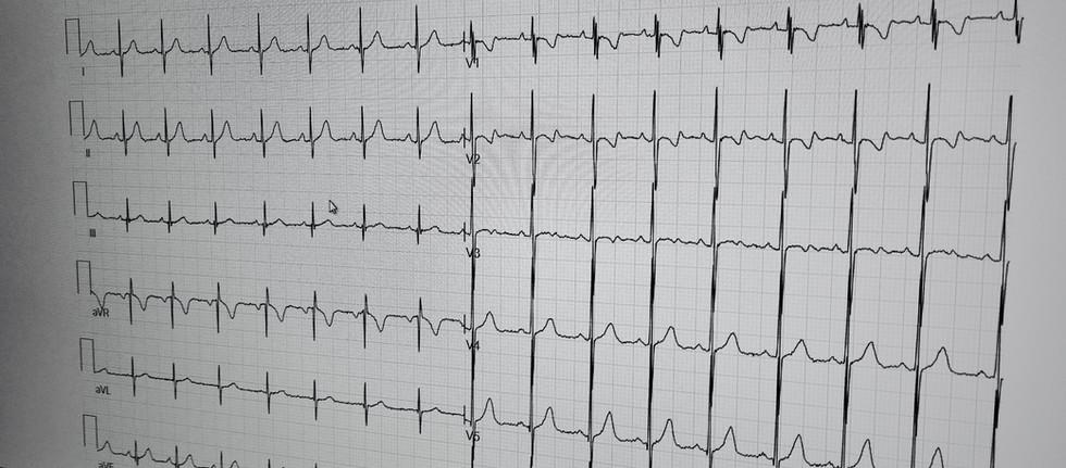 Digitales EKG