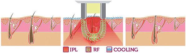 hair-removal-with-E-Light-RF-IPL.jpeg