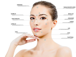 Botox and Filler Facial Areas