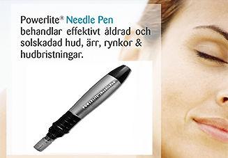 needle-pen-bild.jpg