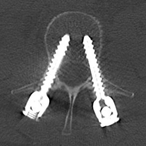 nerve injury from pedicle screw