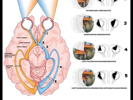 Optic Tract Brain Lesions