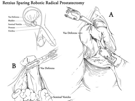 Retzius Sparing Radical Prostatectomy