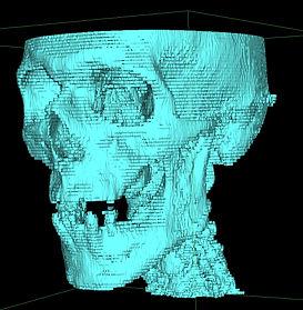 skull DICOM.jpg