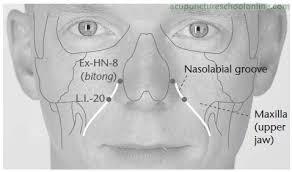 effet post-stimulation de electroacupuncture à Yintang (EX-HN3) GV20 et sur les régions fonctionnell