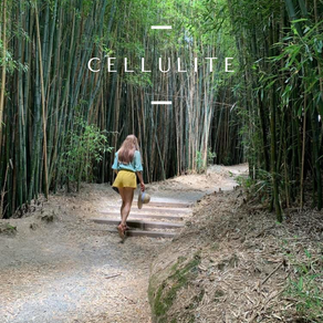 Cellulite / Health and Beauty