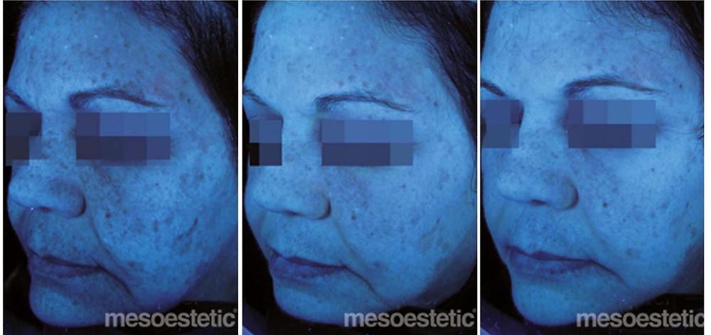 90 day transformation - Blue Light