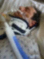 Travis in a Coma