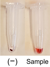 gold nanoparticle diagnostics infectous patogens microbe bacteria