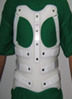 gdapp-corsetfracture.jpg