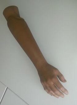 gdapp-prothese-bras-avant-bras.jpg