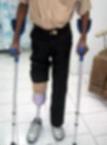 gdapp-prothese-transtibiale-provisoire.j