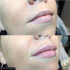 lip-filler-25.jpg