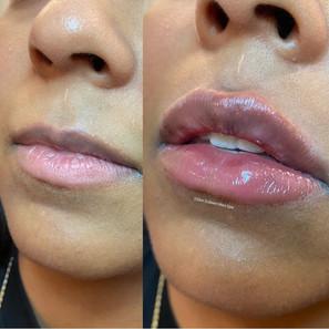 lip-filler-by-kristina-8.jpg