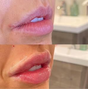 lip-filler-12.jpg