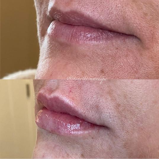 lip-filler-9.jpg