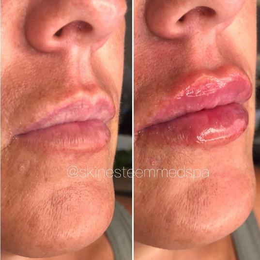 lip-filler-3.jpg
