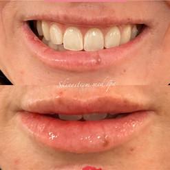 lip-filler-13.jpg
