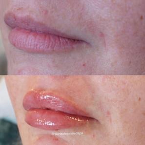 lip-filler-15.jpg