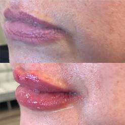 lip-filler-20.jpg