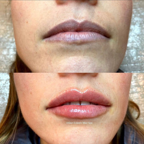 lip-filler-by-kristina-2.jpg