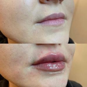 lip-filler-by-kristina-6.jpg