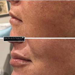 lip-filler-29.jpg