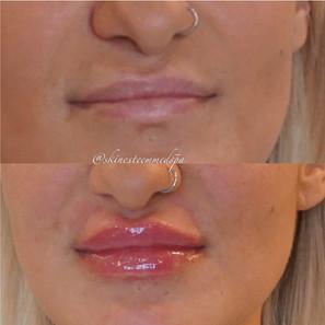 lip-filler-21.jpg
