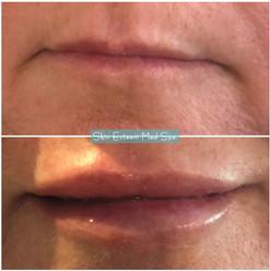 lip-filler-28.jpg