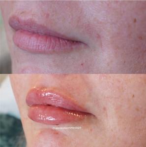 lip-filler-22.jpg