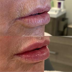lip-filler-7.jpg